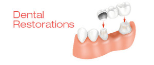 dental-restoration-hanover
