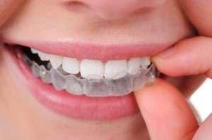 Orthodontics-300x1991